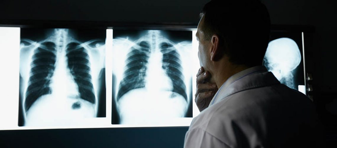 Male doctor at work in public medical clinic and examining x-ray plates of bones, skull and lungs